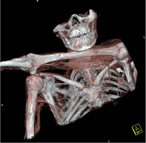 3-D reconstruction of Ötzi's shoulder girdle and surrounding areas