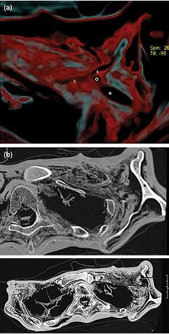 Image of Otzi's Blood Clot