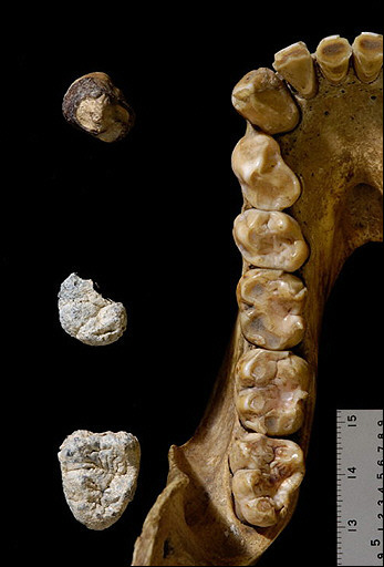 Chororapithecus abyssinicus teeth and a female gorilla tooth row