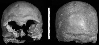 Cioclovina 1 neurocranium