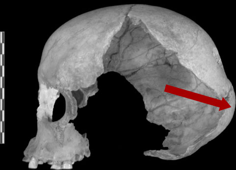 Lateral view of the Muierii 1 cranium « Anthropology.