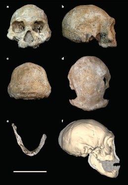 D3444 Cranium & D3900 Mandible