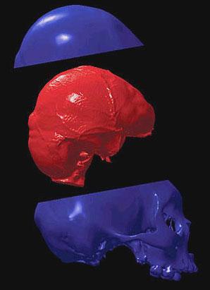 HumanMicrocephalic