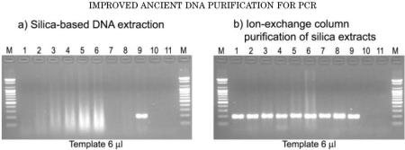 Agarose gel electrophoresis analysis of PCR products
