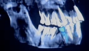 Screen shot of Homo floresiensis' Premolars from a BBC TV Show