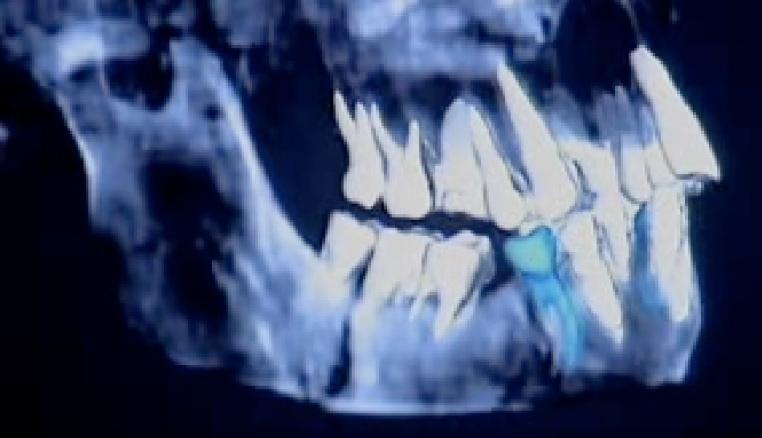 Screen shot of Homo floresiensis' Premolars from a BBC TV Show