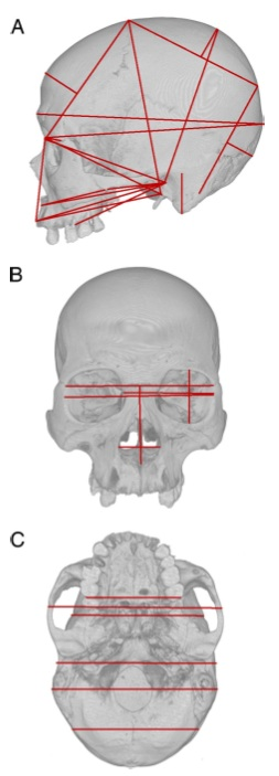 The 37 different cranial measurements
