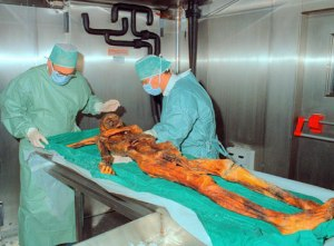 Otzi Under The Knife