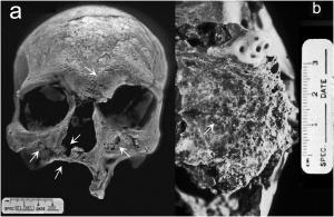 The cranium of individual 1997-1
