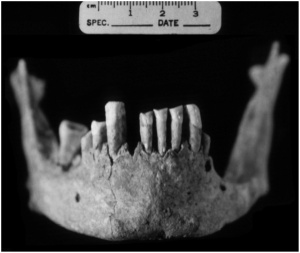 Anterior view of the mandible from individual 1997-1