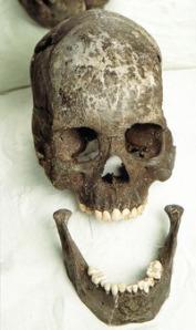 11,000 Year Old Lagoa Santa Brazil Paleoamerican Skull
