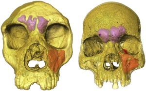 Frontal & maxillary sinuses of Forbes Quarry Neandertal vs. H. sapiens