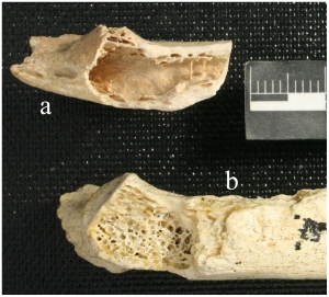 Figure 1. Krapina 120.71 in a caudal view (a). The large lesion is located above the tubercular facet and extends laterally. The trabeculae have been destroyed and the cortex appears expansive. The thin cortical bone forming the superior surface of the cavern was broken away postmortem. (b) Krapina 120.6 shows the normal pattern of bony trabeculae in the medullary space. The surface irregularities are post-mortem. doi:10.1371/journal.pone.0064539.g001