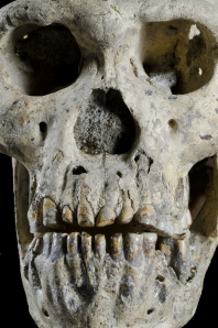 The face of Skull 5. Credit: Guram Bumbiashvili, Georgian National Museum