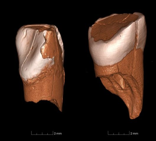 3D models of the two teeth. (Daniele Panetta, CNR Institute of Clinical Physiology)