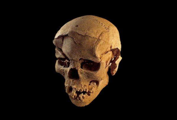 This skeleton was that of a man, found lying prone in the lagoon's sediments. The skull has multiple lesions on the front and on the left side, consistent with wounds from a blunt implement, such as a club. Marta Mirazon Lahr