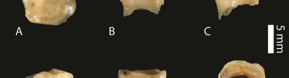 The newly discovered Denisovan tooth is the oldest specimen of this ancient human cousin found so far. BENCE VIOLA