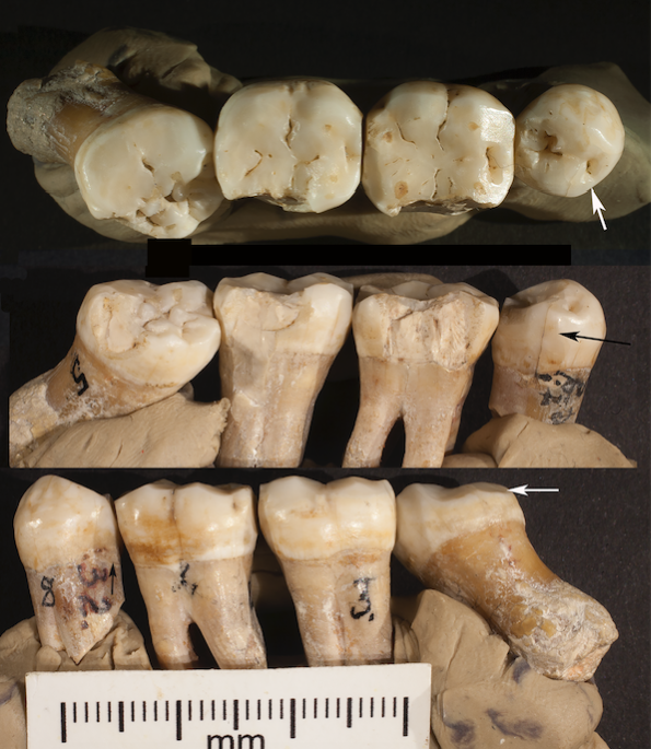 Three views of the four articulated teeth making up KDP 20. a. occlusal view showing lingually placedmesial interproximal wear facet on P4 (arrow) and buccal wear on M3; b. lingual view showing a mesiallyplaced interproximal wear facet on P4 (arrow), chips from lingual faces of all teeth and rotated, partiallyimpacted M3; c. buccal view showing rotated buccal face of M3 (arrow) and hypercementosis on its root. Credit: David Frayer, University of Kansas