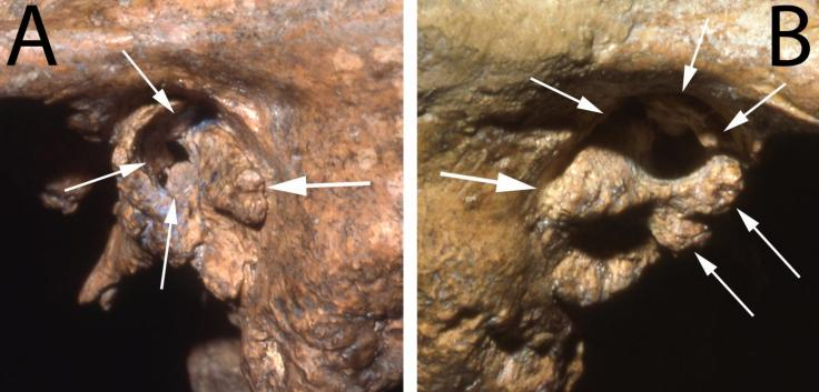 Two views of the ear canal of the Neandertal fossil Shanidar 1 show substantial deformities that would likely have caused profound deafness. CREDIT Erik Trinkaus