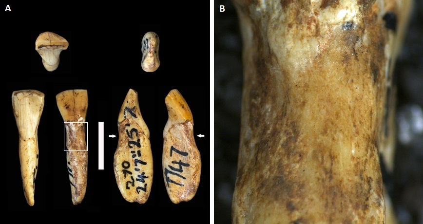 Australopithecus africanus teeth with lesions. Ian Towle.